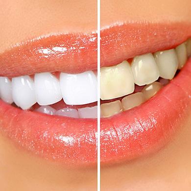 Как отбелить зубы на фото онлайн