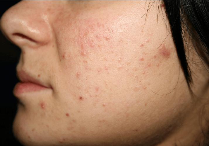 Исходное изображения для выравнивания тона кожи