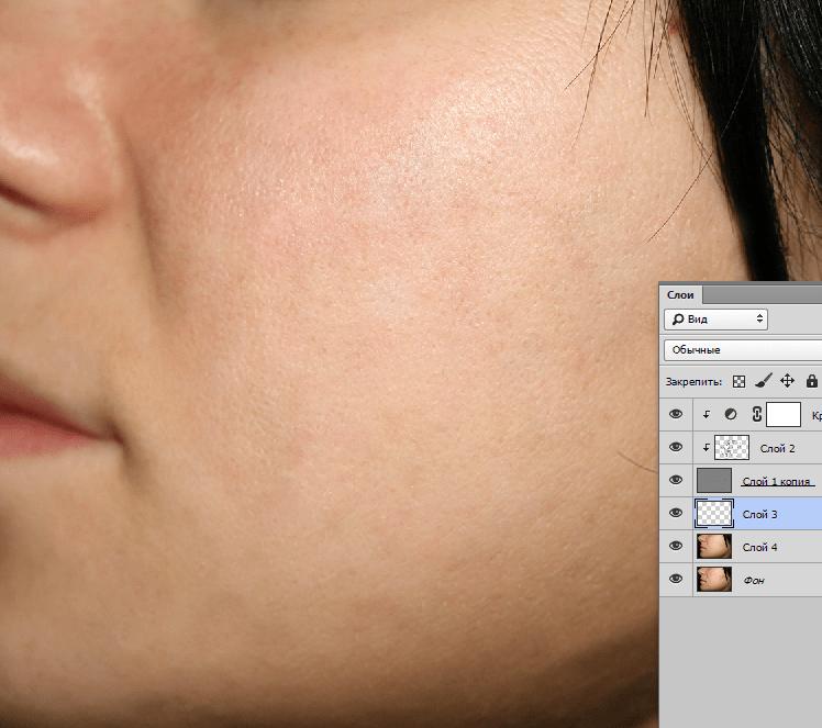 Удаление пятен с кожи