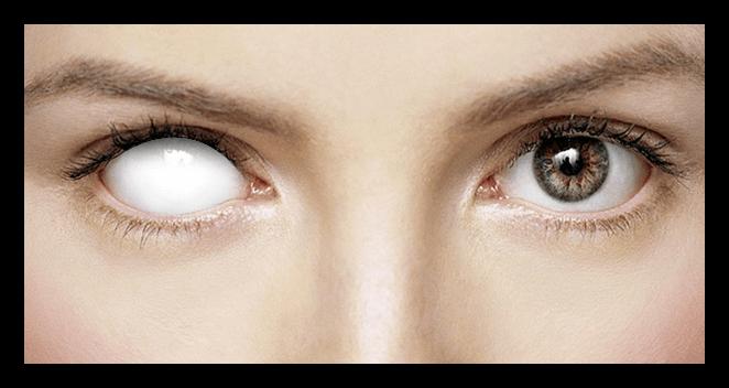 Результат создания белого глаза в Фотошопе